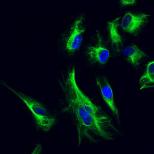 Vimentin cytoskeleton